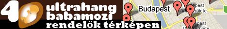 4D ultrahang babamozi rendel�k t�rk�pen - Budapesten �s orsz�gszerte